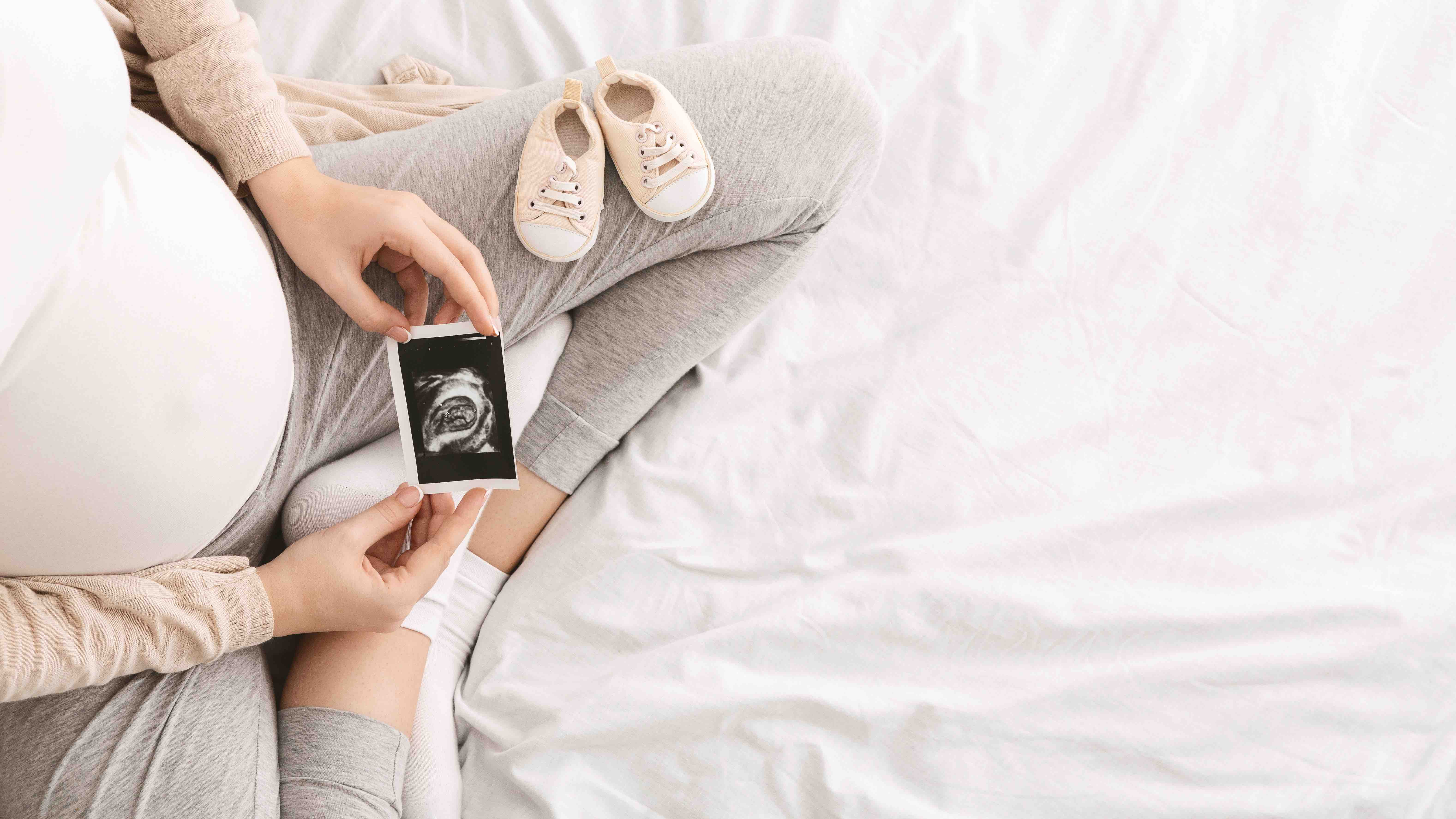 Pregnant woman enjoying future motherhood with first ultrasound photo of her baby, top view with free space